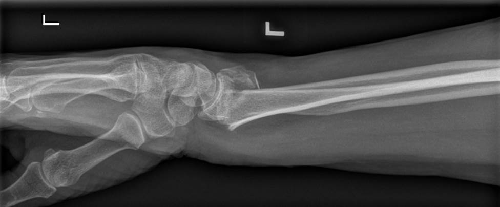 Wrist Fractures Distal Radius Fracture Colles Fracture Smiths Fracture One of the most common orthopedic injuries is the wrist fracture or broken wrist More
