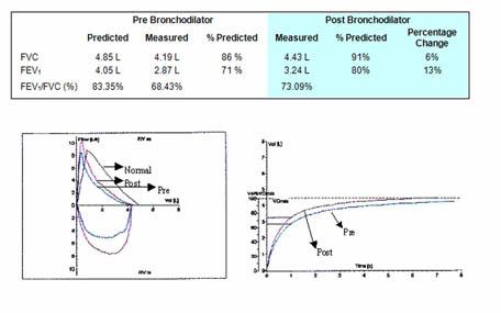 Spirometri tabel